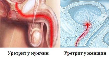Жжение и боль в половом члене во время секса